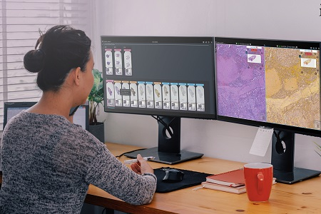 Support provided by digital pathology workflow software